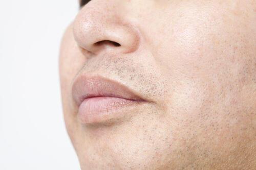 青 髭 対策
