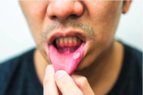 予防 噛んだ 口内炎